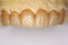 Full contour zirconia anterior bridge